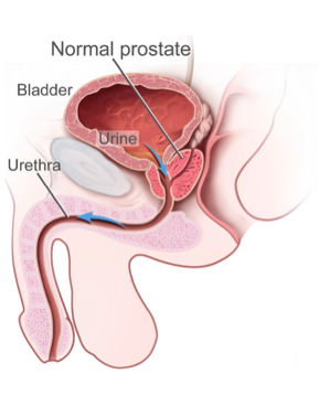 stor prostata
